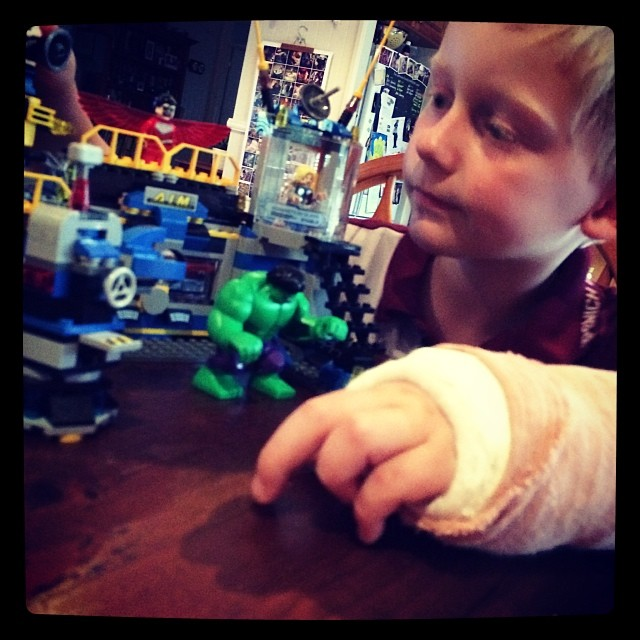 Apparently when you break your arm you get Lego.